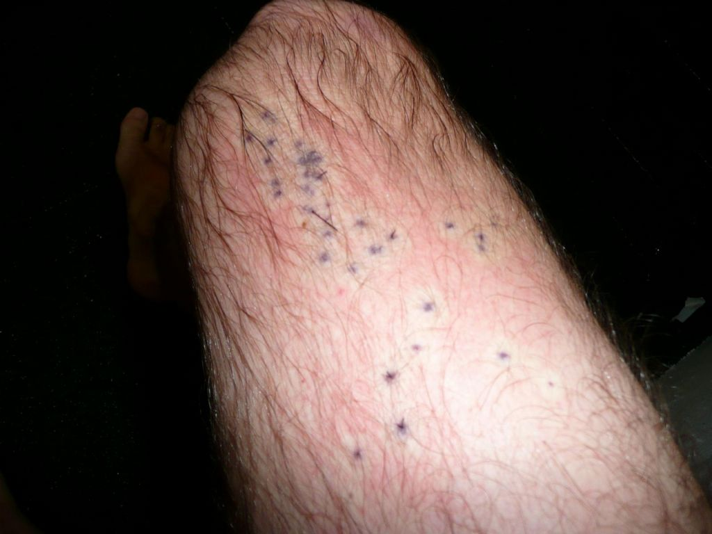 20 sea urchin spikes in my leg, that did hurt like a bitch