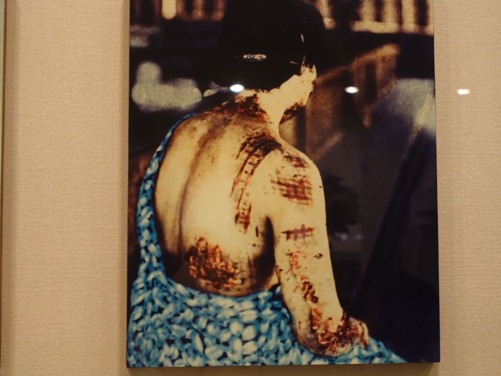 this poor lady got her kimono patterns burnt into her skin